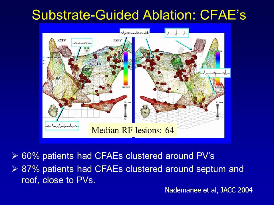Substrate-Guided Ablation: CFAE's