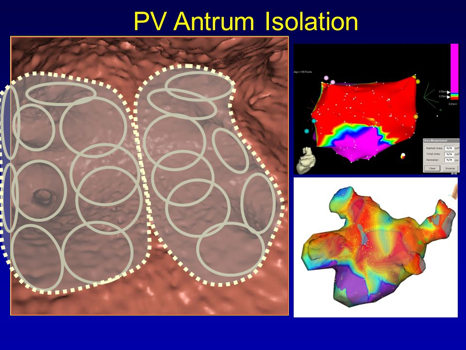 PV Antrum Isolation