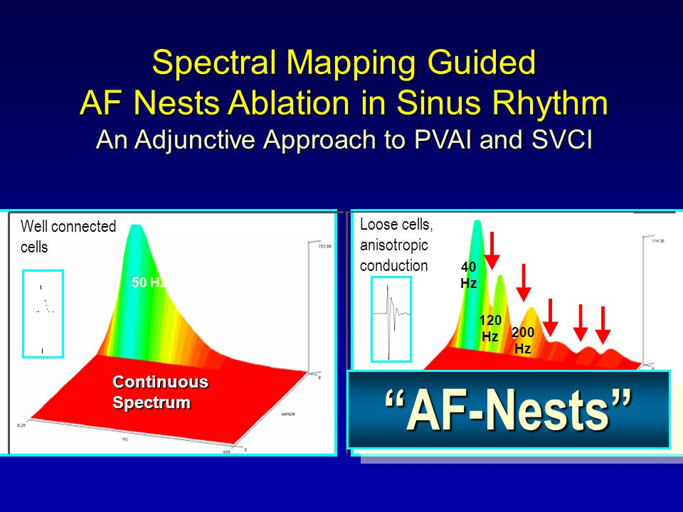 AF-Nests Spectral Mapping Guided AF Nests Ablation in Sinus Rhythm