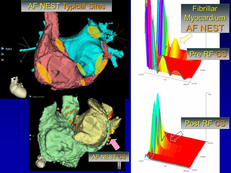 AF NEST AF NEST Typical Sites Fibrillar Myocardium Pre RF CS