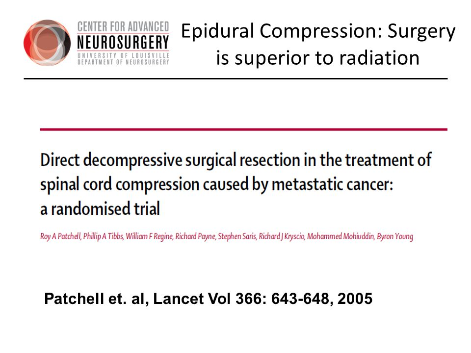 Epidural Compression: Surgery is superior to radiation