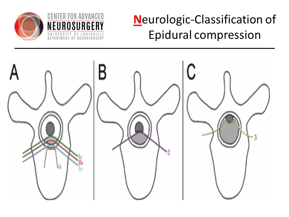 Neurologic-Classification of Epidural compression