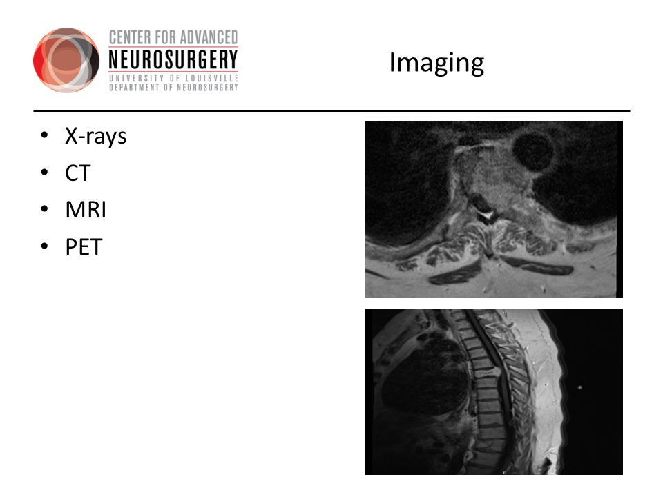 Imaging X-rays CT MRI PET