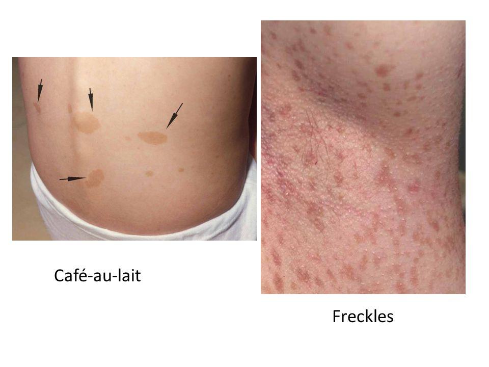 Café-au-lait Freckles