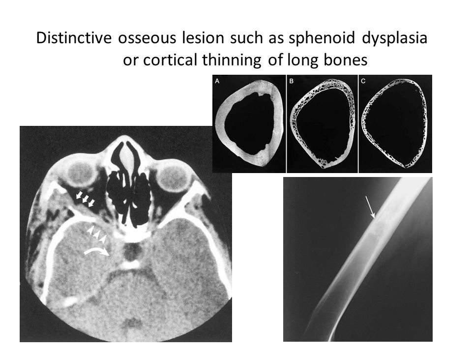 Distinctive osseous lesion such as sphenoid dysplasia or cortical thinning of long bones