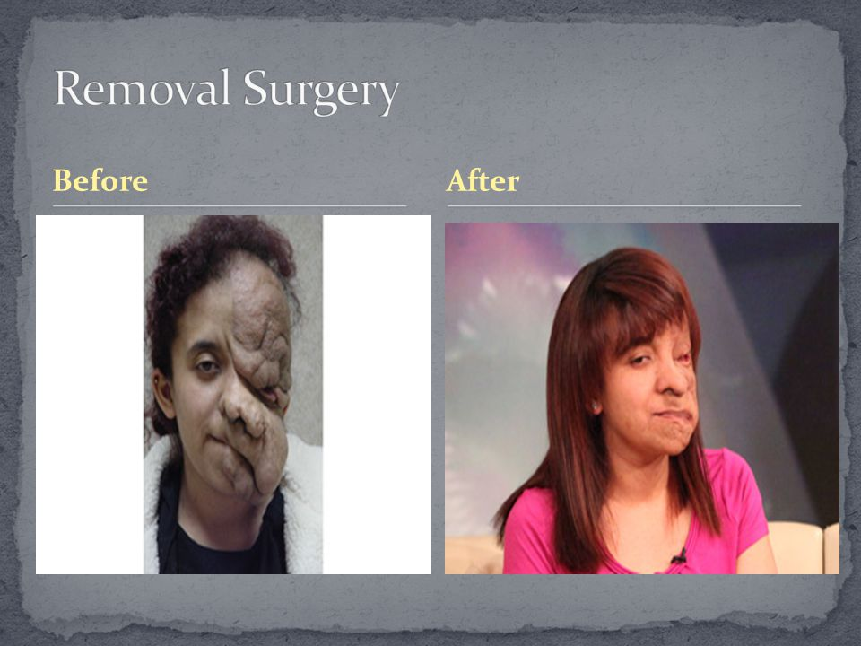 Removal Surgery Before After