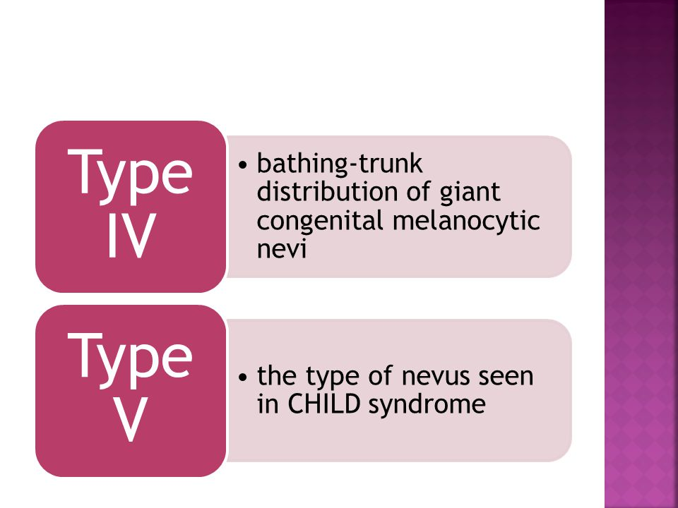 Type IV bathing-trunk distribution of giant congenital melanocytic nevi.