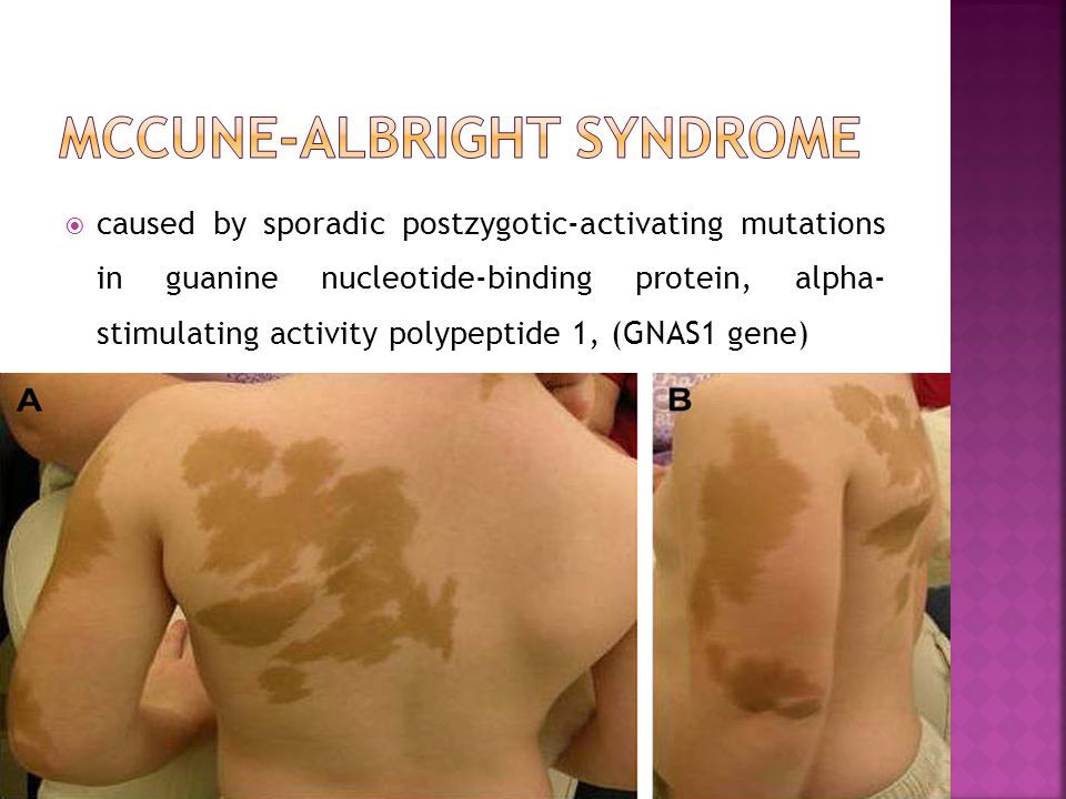 McCune-Albright syndrome