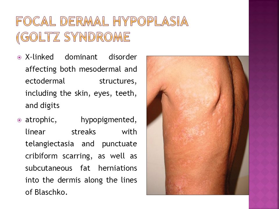 Focal dermal hypoplasia (Goltz syndrome