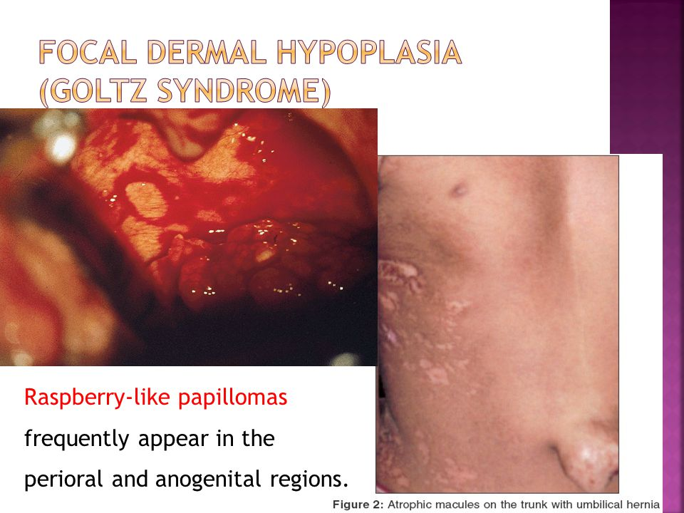 Focal dermal hypoplasia (Goltz syndrome)