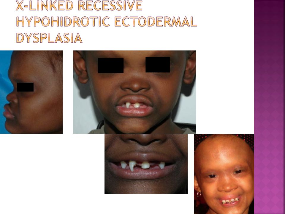 X-linked recessive hypohidrotic ectodermal dysplasia
