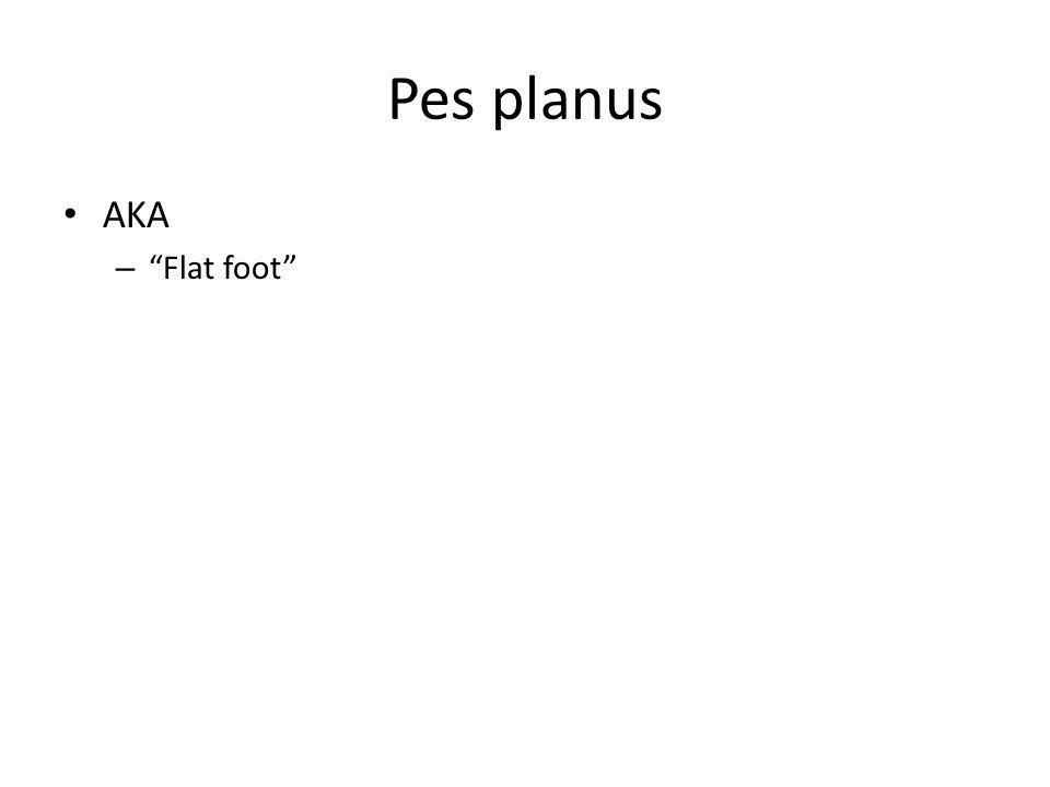 Pes planus AKA Flat foot
