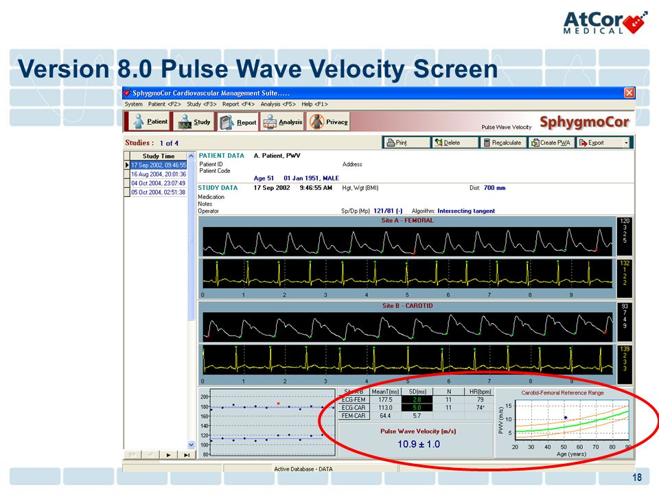 Version 8.0 Pulse Wave Velocity Screen