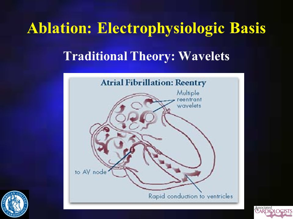 Ablation: Electrophysiologic Basis