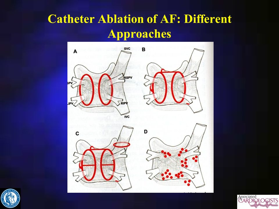 Catheter Ablation of AF: Different Approaches