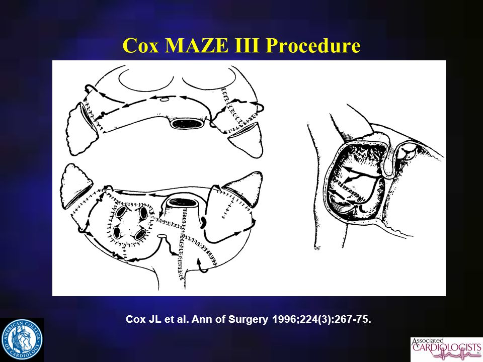 Cox MAZE III Procedure Cox JL et al. Ann of Surgery 1996;224(3):