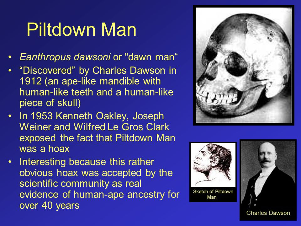 Piltdown Man Eanthropus dawsoni or dawn man