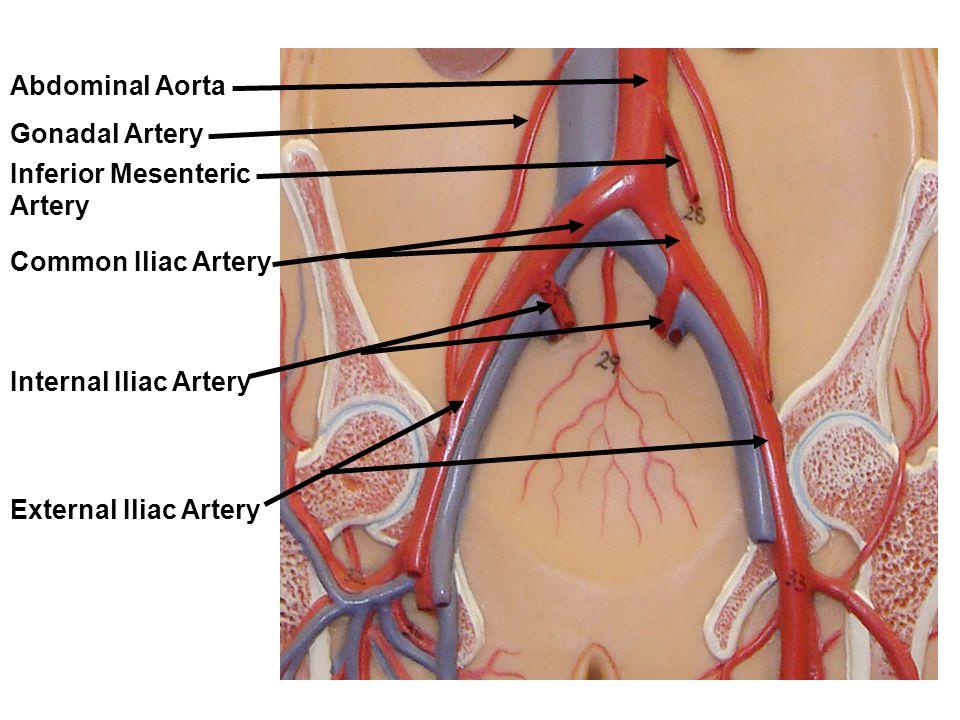 Abdominal Aorta Gonadal Artery. Inferior Mesenteric Artery. Common Iliac Artery. Internal Iliac Artery.
