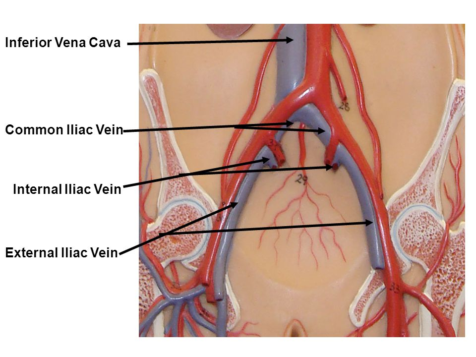 Inferior Vena Cava Common Iliac Vein Internal Iliac Vein External Iliac Vein