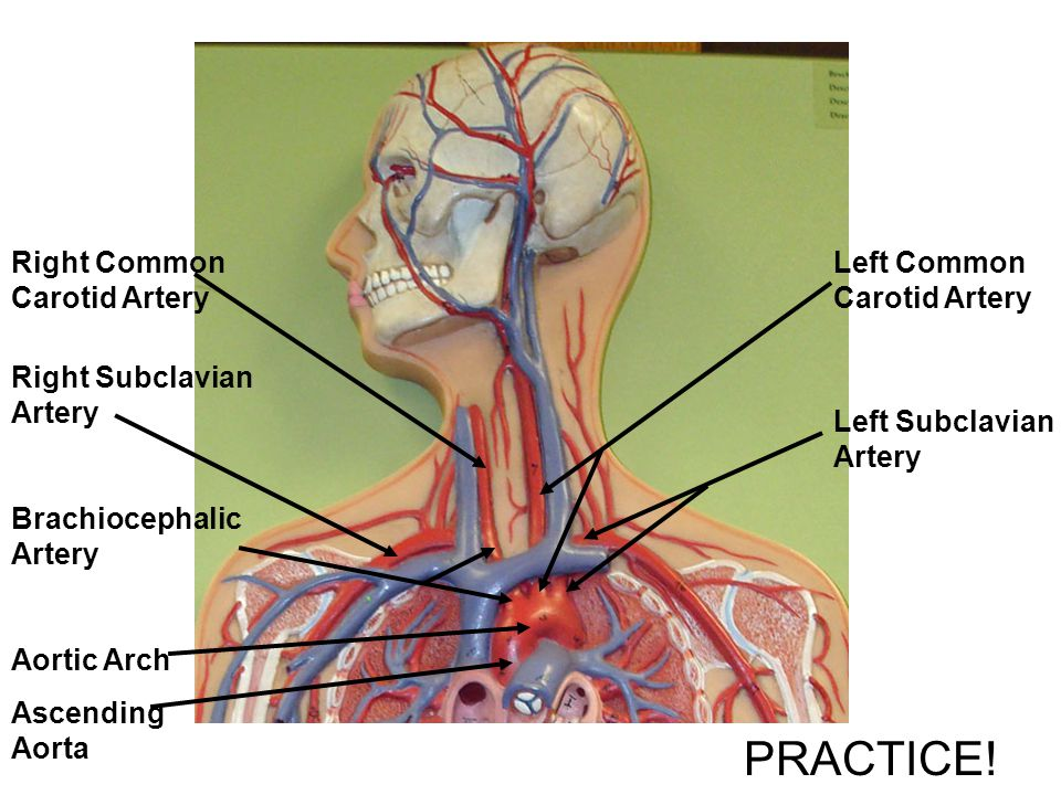 PRACTICE! Right Common Carotid Artery Left Common Carotid Artery