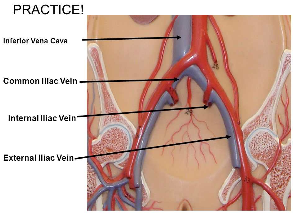 PRACTICE! Common Iliac Vein Internal Iliac Vein External Iliac Vein