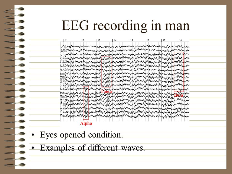 EEG recording in man Eyes opened condition.