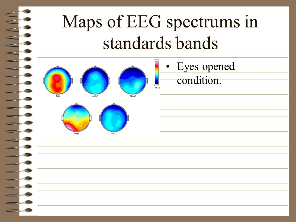 Maps of EEG spectrums in standards bands