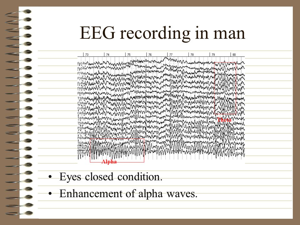 EEG recording in man Eyes closed condition.