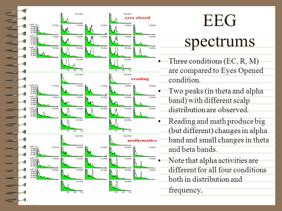 EEG spectrums Three conditions (EC, R, M) are compared to Eyes Opened condition.