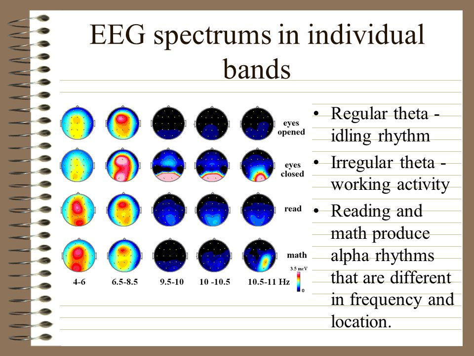 EEG spectrums in individual bands