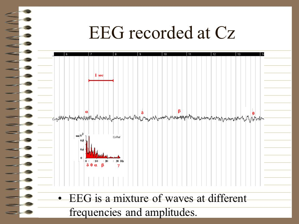 EEG recorded at Cz EEG is a mixture of waves at different frequencies and amplitudes.