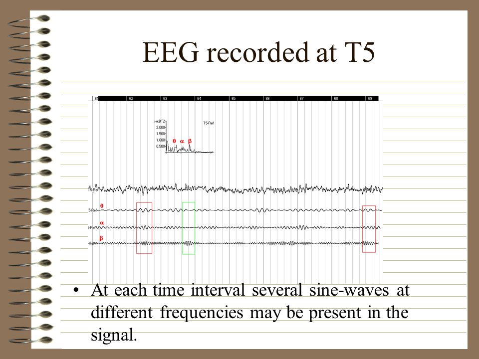 EEG recorded at T5 At each time interval several sine-waves at different frequencies may be present in the signal.