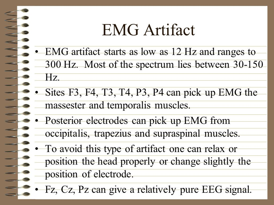EMG Artifact EMG artifact starts as low as 12 Hz and ranges to 300 Hz. Most of the spectrum lies between 30-150 Hz.