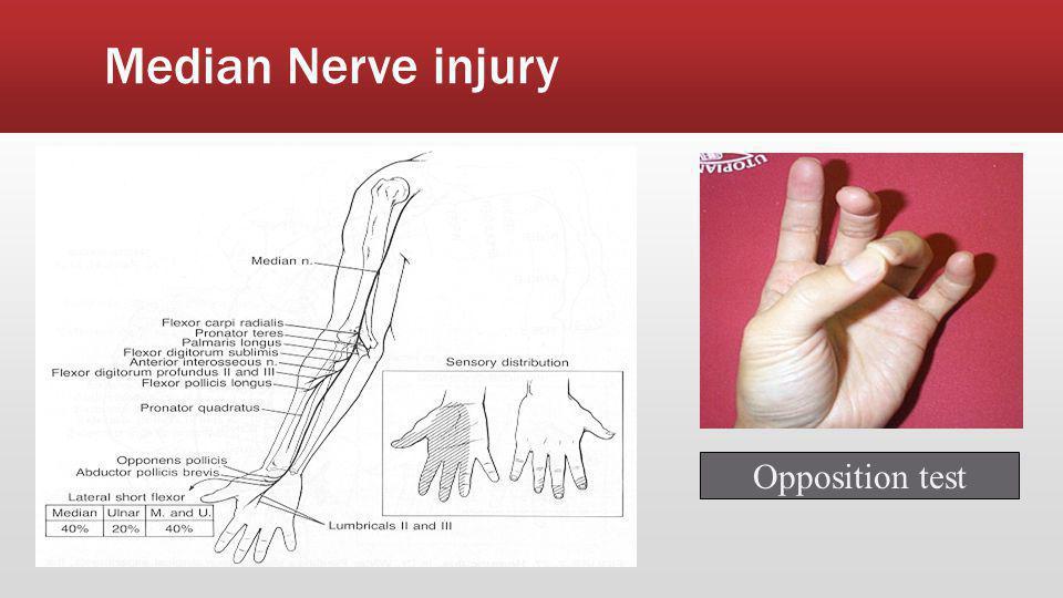 Median Nerve injury Opposition test