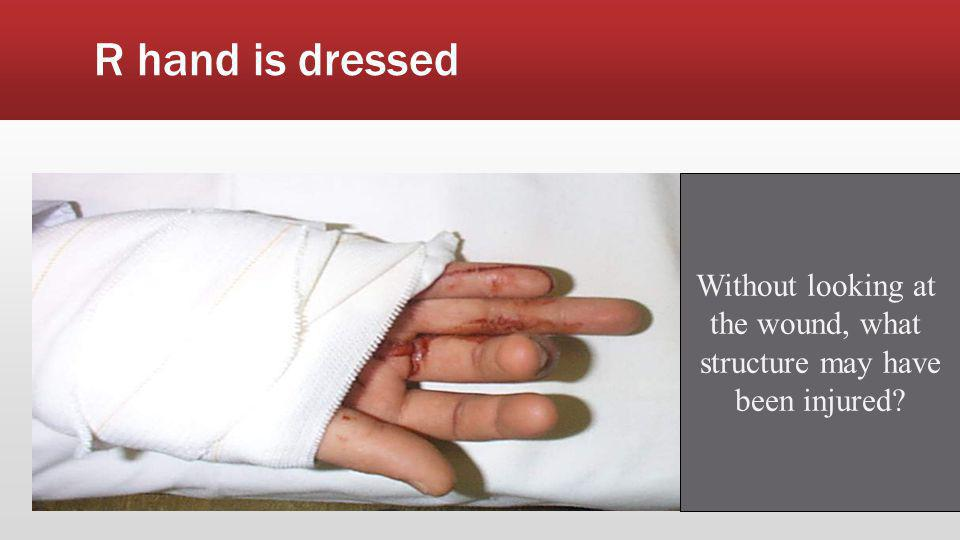 R hand is dressed Without looking at the wound, what