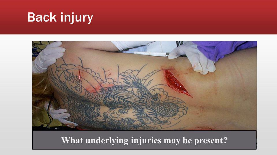 What underlying injuries may be present
