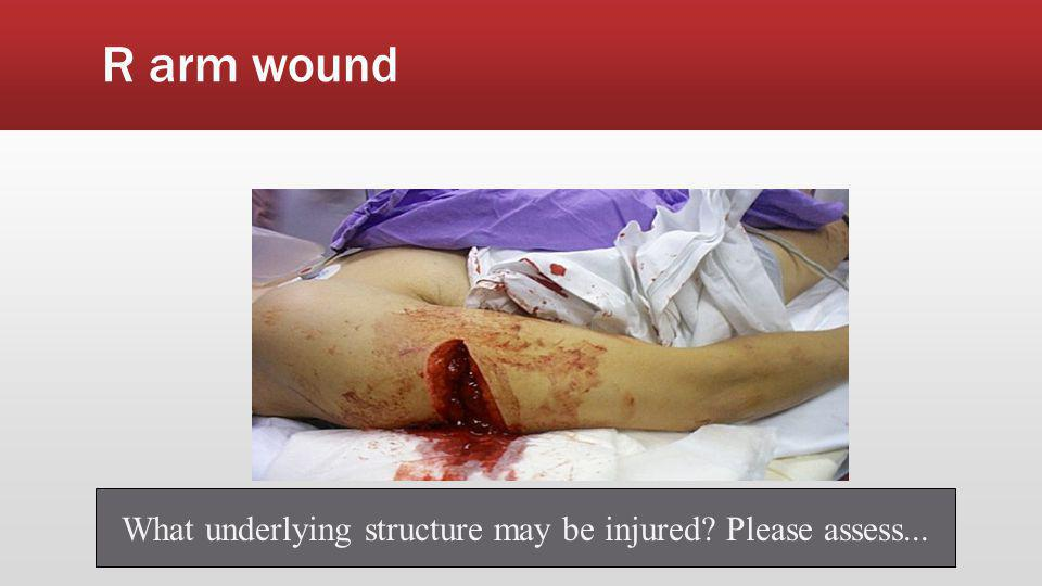 What underlying structure may be injured Please assess...