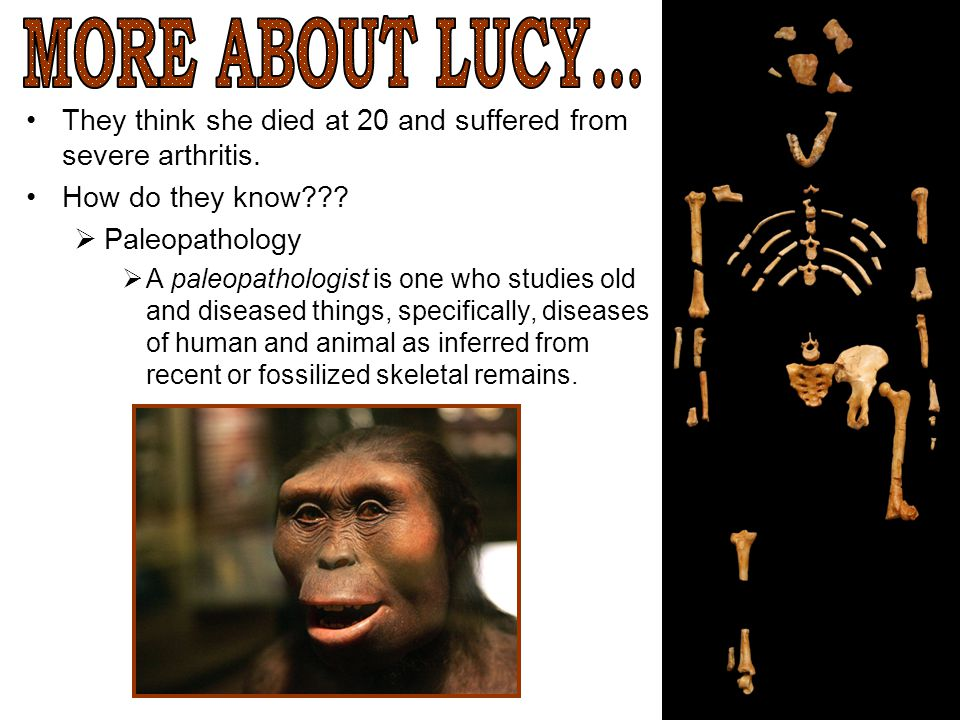 MORE ABOUT LUCY... They think she died at 20 and suffered from severe arthritis. How do they know