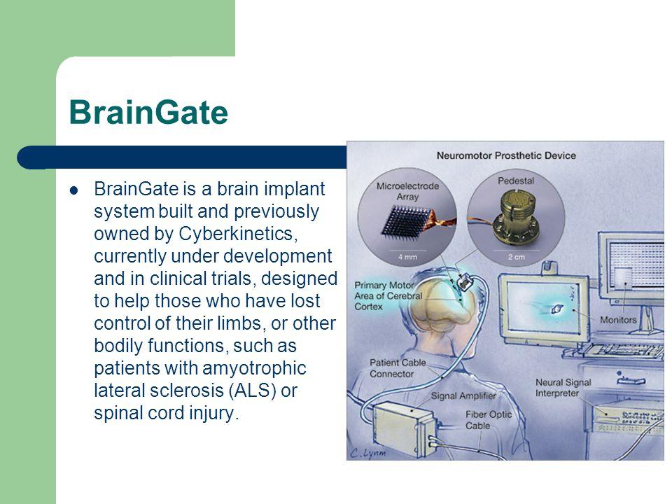 BrainGate