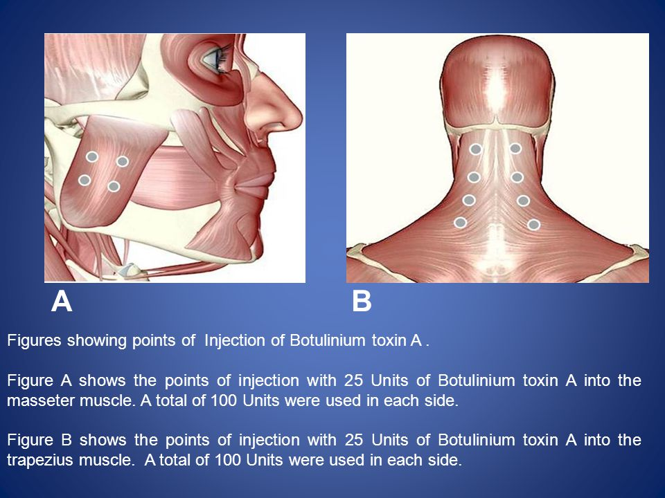 A B Figures showing points of Injection of Botulinium toxin A .