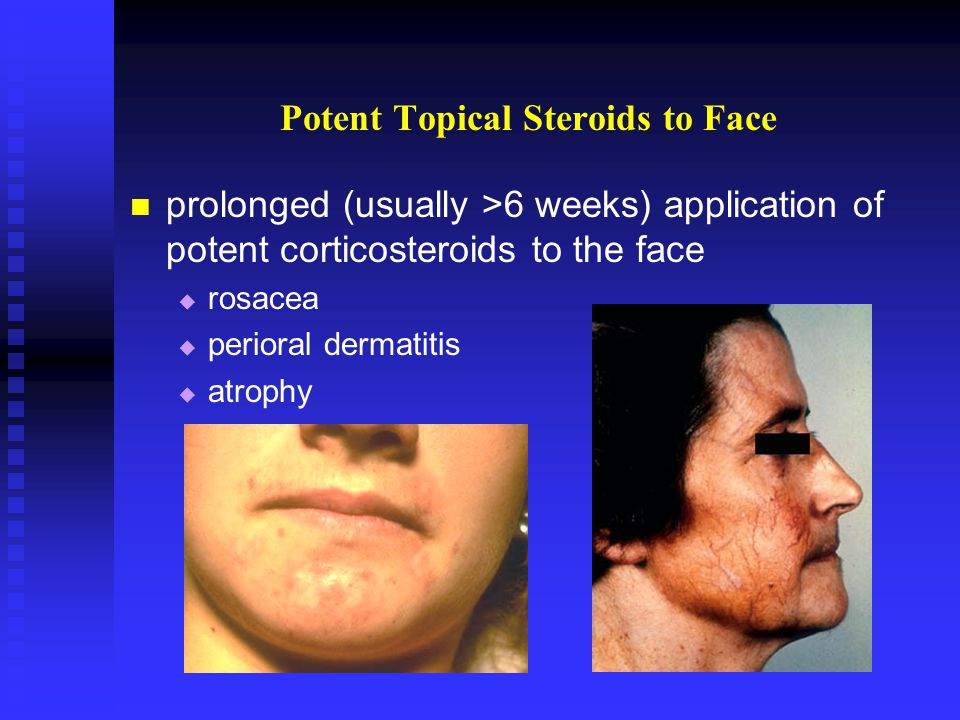 Potent Topical Steroids to Face