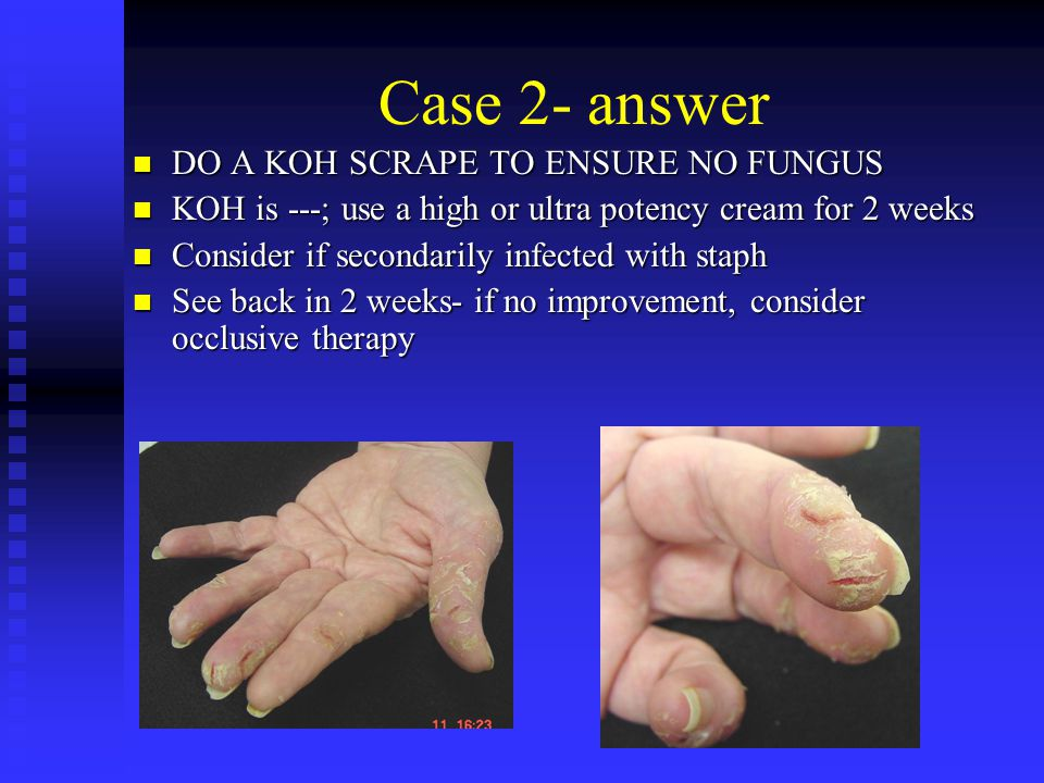 Case 2- answer DO A KOH SCRAPE TO ENSURE NO FUNGUS