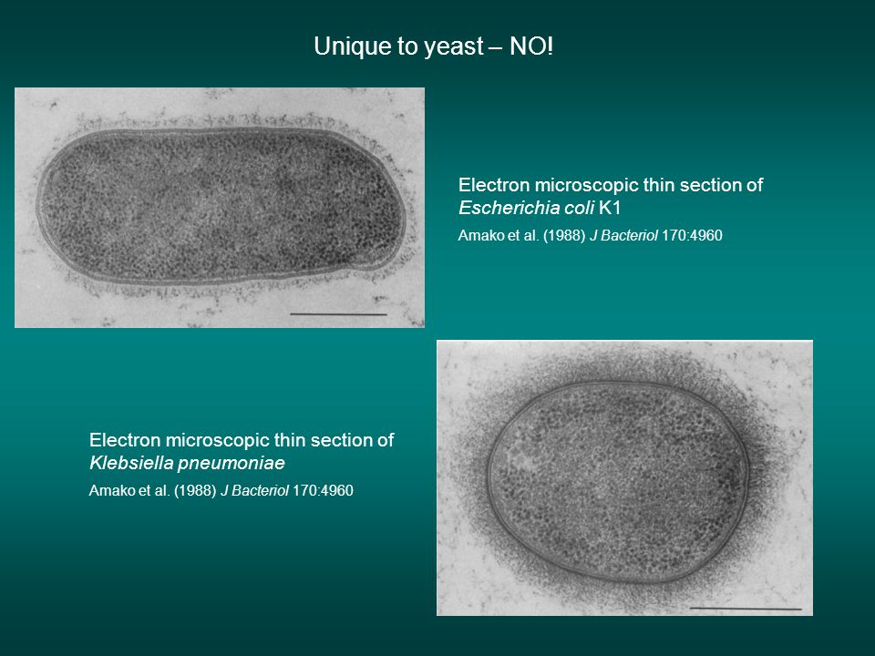 Unique to yeast – NO! Electron microscopic thin section of Escherichia coli K1. Amako et al. (1988) J Bacteriol 170:4960.