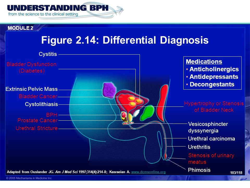 Figure 2.14: Differential Diagnosis