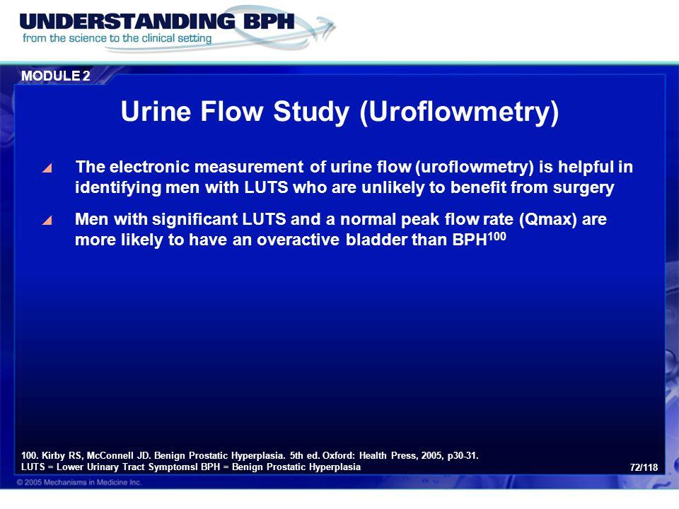 Urine Flow Study (Uroflowmetry)