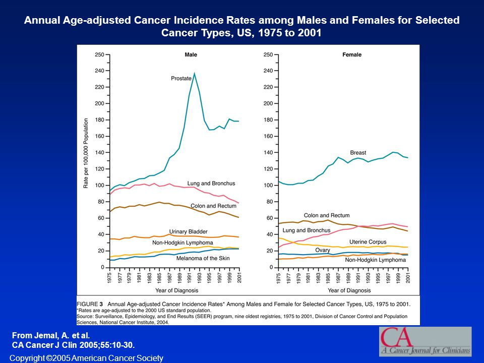 Annual Age-adjusted Cancer Incidence Rates among Males and Females for Selected Cancer Types, US, 1975 to 2001