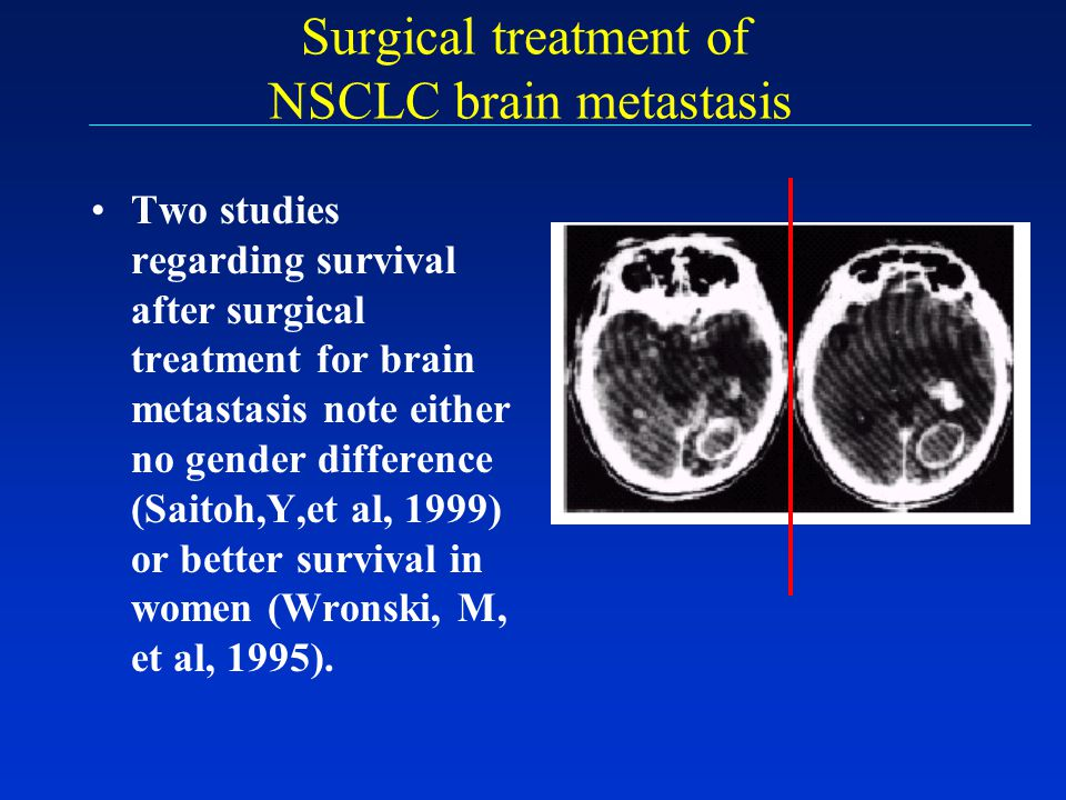 Surgical treatment of NSCLC brain metastasis