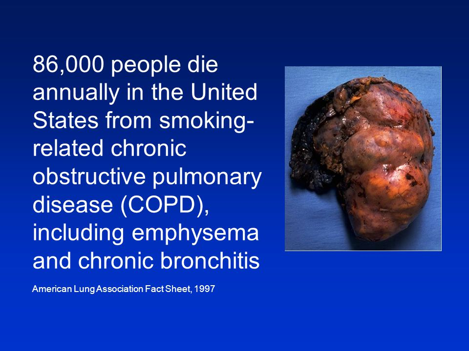 86,000 people die annually in the United States from smoking-related chronic obstructive pulmonary disease (COPD), including emphysema and chronic bronchitis
