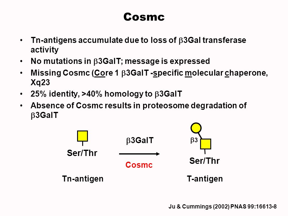 Cosmc Tn-antigens accumulate due to loss of b3Gal transferase activity. No mutations in b3GalT; message is expressed.