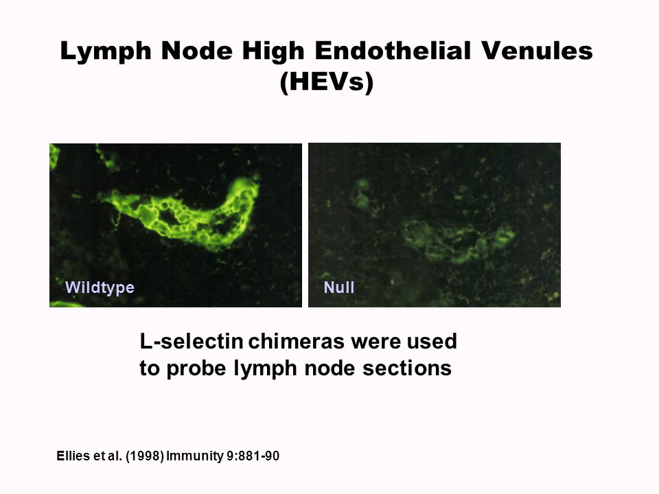 Lymph Node High Endothelial Venules (HEVs)